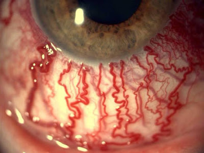 العين-تحت-تأثير-المخدرات-أو-التوتر