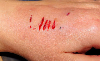 HOW TO HEAL CUTS QUICKLY (USING NATURAL REMEDIES) 1