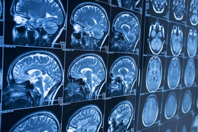 Kecerdasan Buatan yang Bisa Mendeteksi Alzheimer