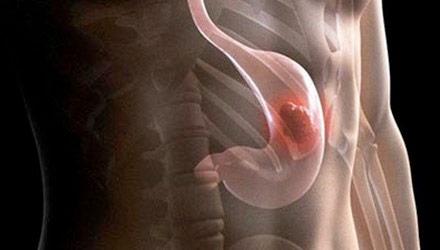 Bệnh polyp da dày có nguy cơ ung thư hay không?-https://benhlynamkhoa115.blogspot.com/