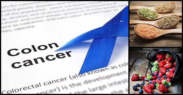 Foods That Can Help Reduce The Risk Of Developing Colon Cancer