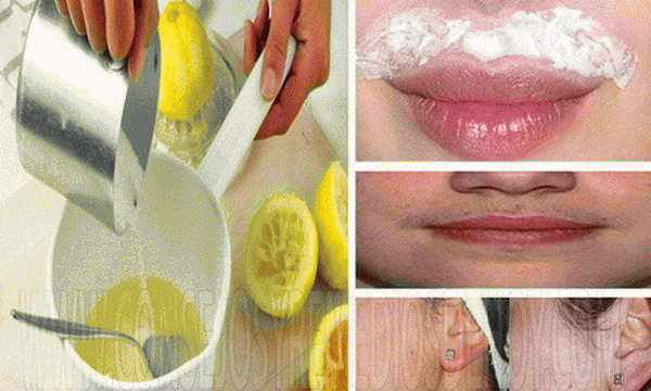 This Is The Best Remedy To Remove Facial Hair Permanently