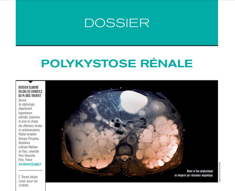 Dossier : Polykystose Rénale - Livres et cours de médecine gratuits