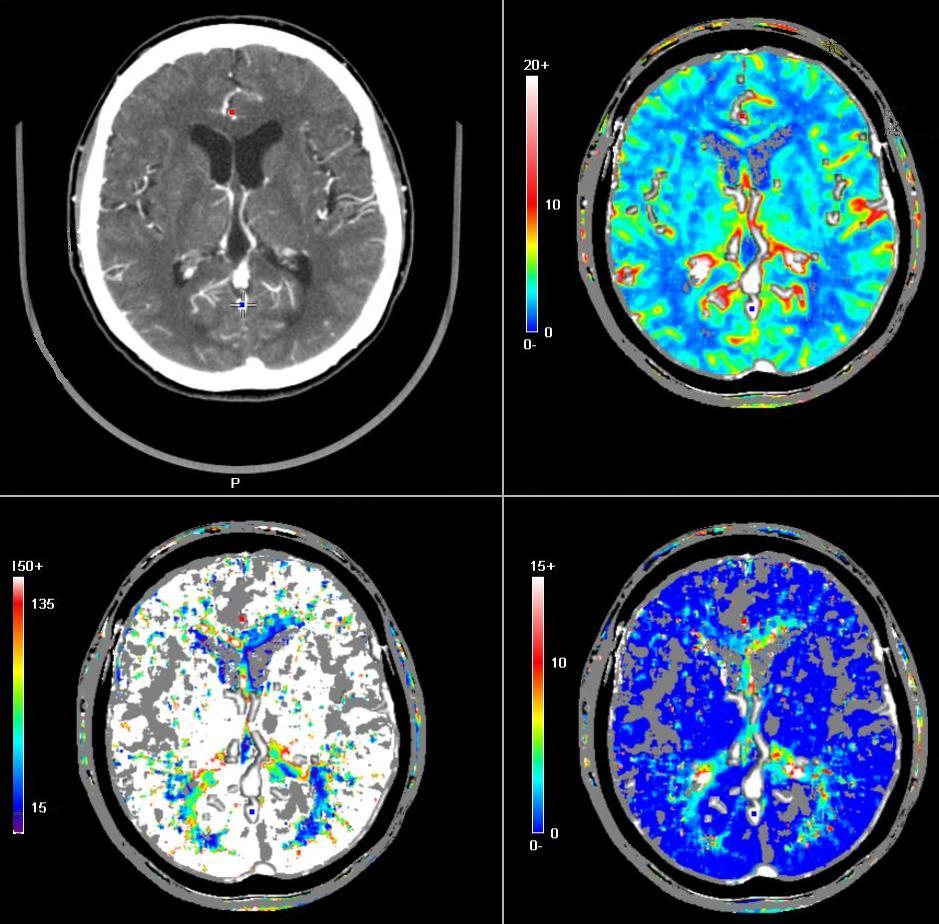brain cat scan -#main