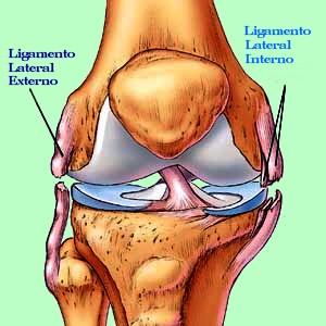 dolor en el ligamento externo de la rodilla