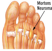 Morton's Neuroma and its Symptoms - El Paso Chiropractor