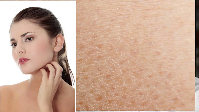 Causes of Dry Skin - Guide to Dry Skin Relief