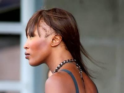 Vista de lado de ex modelo con alopecia por tracción