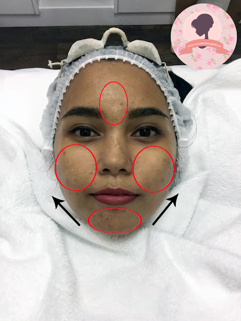 Before-treatment-PPP-Laser-Clinic