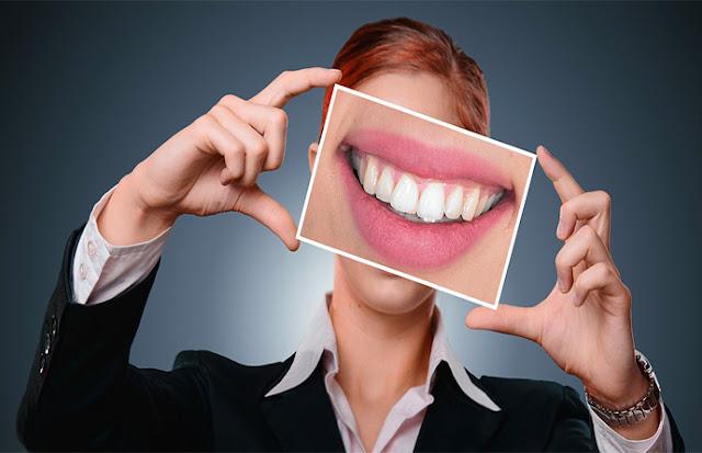 Cara Cepat Merubah Gigi Kuning Menjadi Tampak Lebih Putih Secara Alami