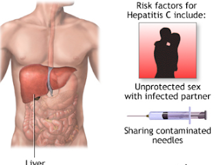 Hepatitis C is a virus that can infect the liver