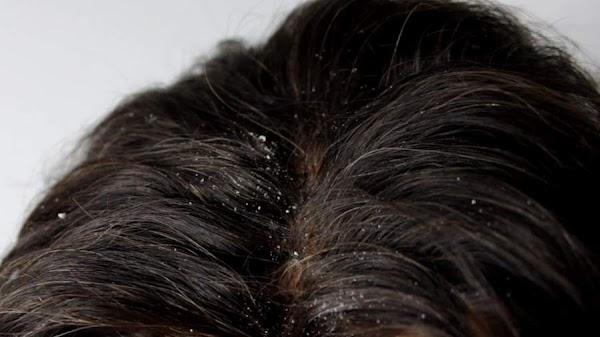 [*DANDRUFF*] बालों में रूसी क्यों होती है? रूसी से जुड़ी पांच जरूरी बातें