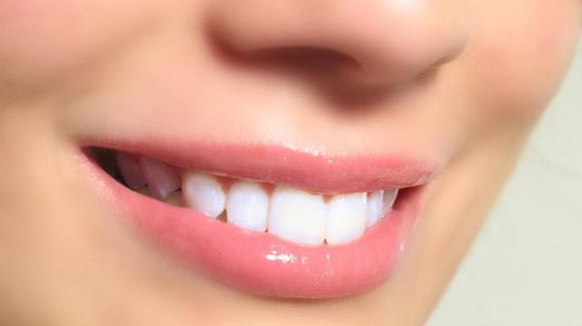 Empat Bahan Alami Yang Putihkan Gigi