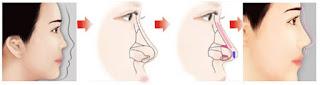 Sửa mũi hỏng như thế nào