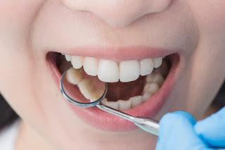 6 Of The Best Foods for Dental & Gum Health