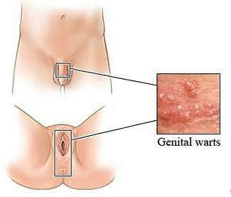 Types of sexually transmitted diseases warts