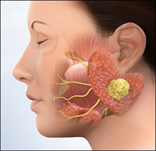 parotid tumors, ayurvedic treatment, herbal remedies, causes, symptoms, diagnosis