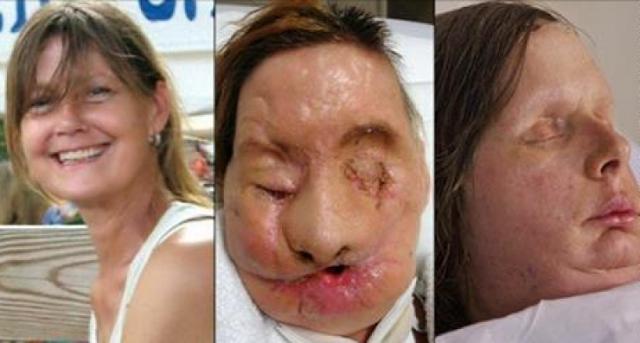 أرادت أن تزور صديقتها... لكن ما حدث لها هناك كان صادماً! إليكم ماذا حدث لها وكيف تشوه وجهها بهذه الطريقة...
