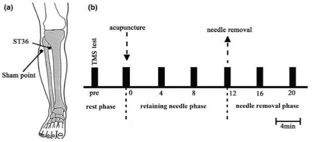 図:足三里の運動皮質刺激効果