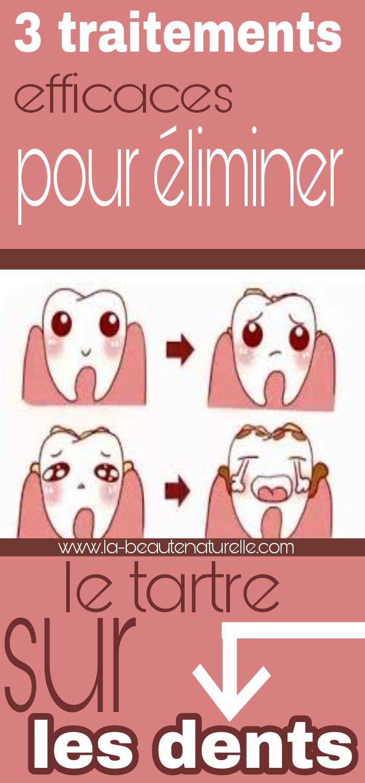3 traitements efficaces pour éliminer le tartre sur les dents