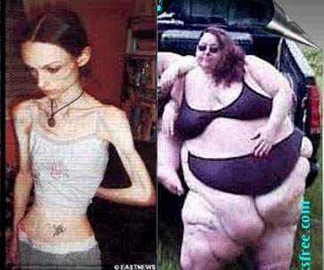Can Fat People Be Anorexic 86