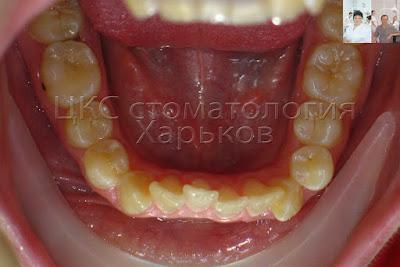 врач-ортодонт исправляет неровные зубы