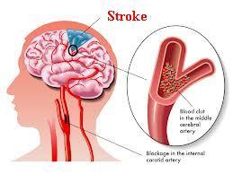 Cara Menangani Penderita Stroke