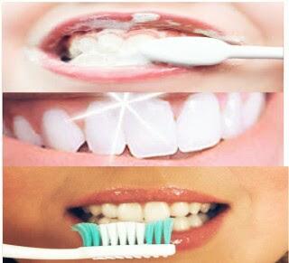أفضل الخطوات لتبييض الأسنان