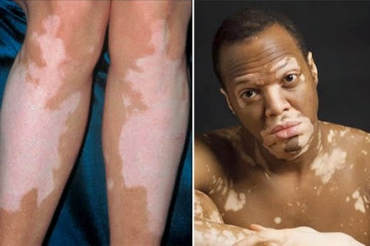 Causes, Symptoms, and Treatment of Leucoderma