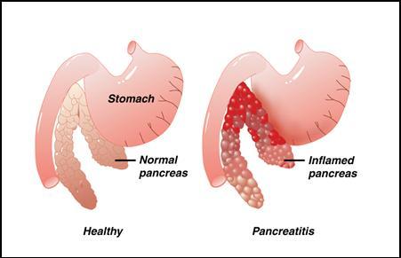 Fatty Infiltration of the Pancreas - Pancreas Case Studies ...  Fatty Pancreas