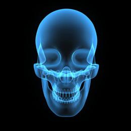 Perte osseuse dans la mâchoire