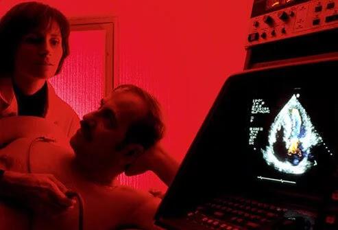 pemeriksaan penyakit jantung ekokardiogram