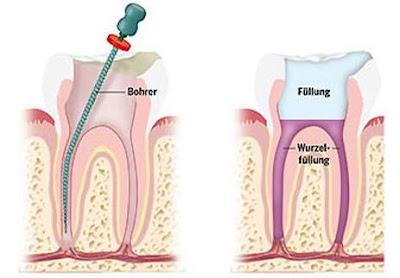 ¿Cuáles son los cuidados después de la endodoncia?