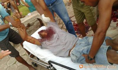 Homem é executado com tiro na boca em Santa Quitéria.