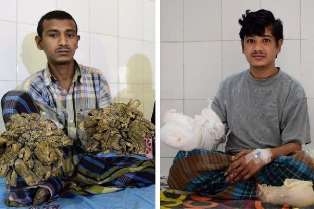 'Lelaki Pokok' Kembali Normal Selepas 16 Pembedahan