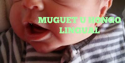 muguet_hongo_lengua