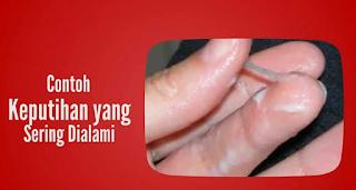 Gambar obat tradisional keputihan campur darah