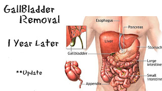 side effects of not having a gallbladder