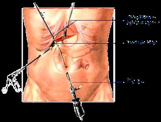 La segunda situación es cuando las pruebas revelan un aumento de las enzimas pancreáticas o del hígado