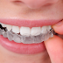 Looking for the Cheapest or Most Affordable Teeth Invisalign in the Philippines