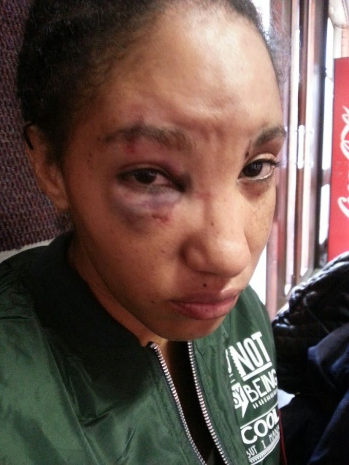 Sowetan Model lives in Fear as Boyfriend gets Bail after Beating her with Bat