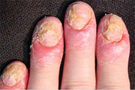 Tratamientos Para La Psoriasis En Las Uñas