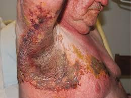 Obat Ampuh Penyakit Kulit Herpes