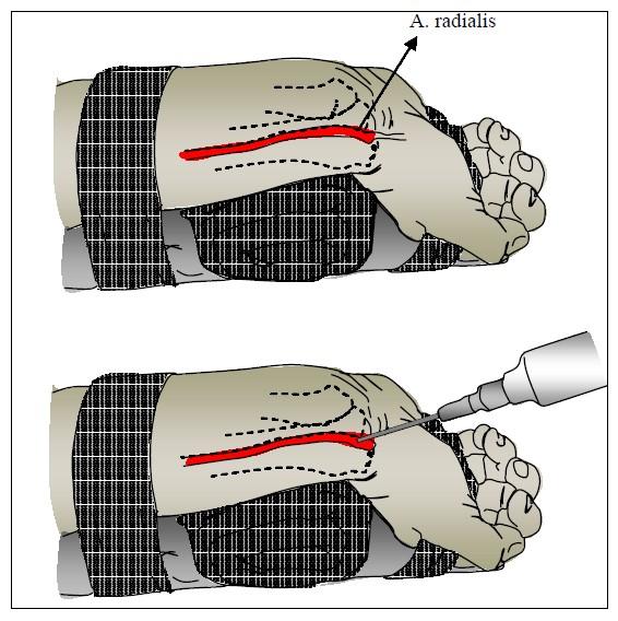 varicoză după operație pe venele după operație varicoase vene pe picioare