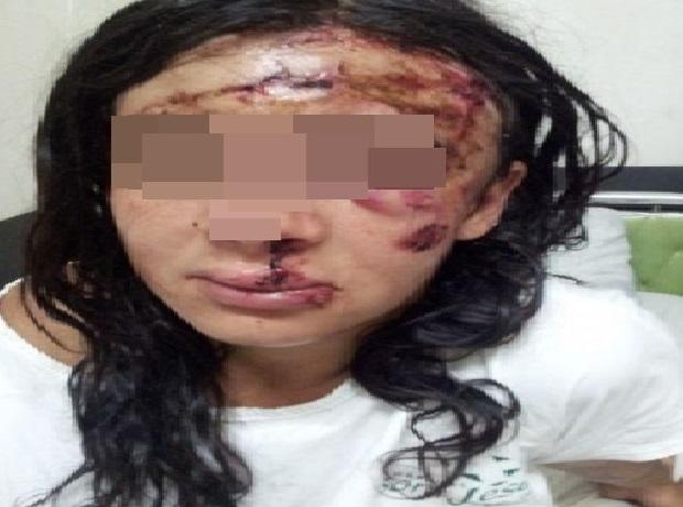 Resultado de imagem para Garota de programa é espancada por mototaxista depois de ato sexual em cidade do Sertão