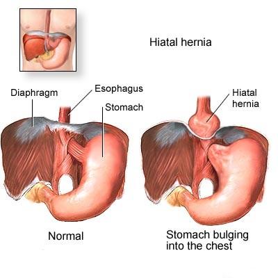 Hiatus Hernia: Reason associated with Hiatus Hernia