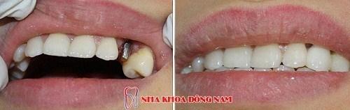 (Cấy ghép Implant phục hồi tính thẩm mỹ và chức năng cho hàm răng)