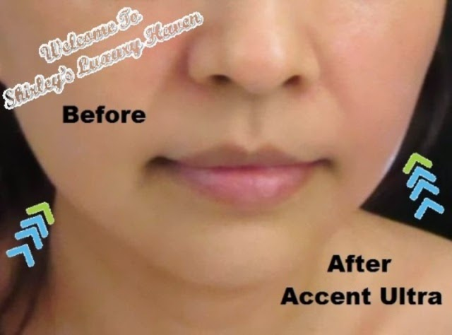 celevenus aesthetic clinic accent ultra reviews