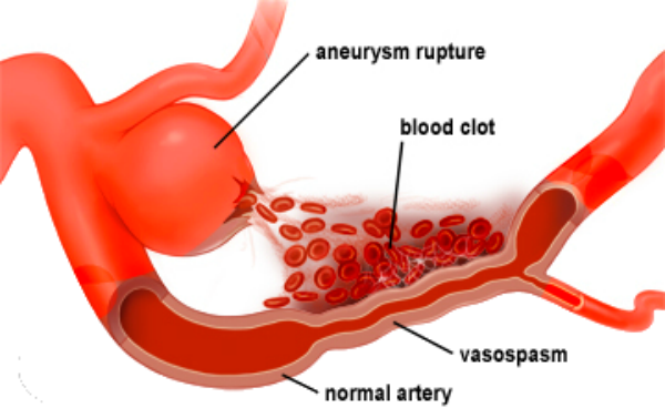 Aneurysm of the brain symptoms and treatment