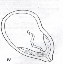 Major Placenta Previa